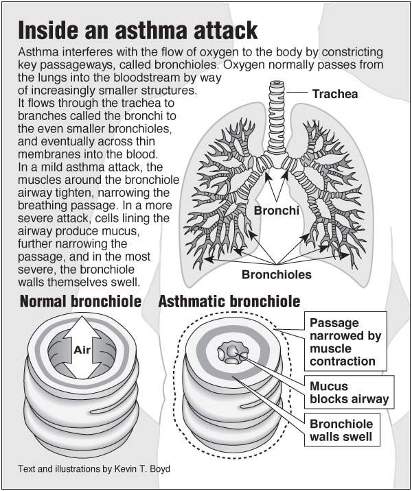 Inside an asthma attack