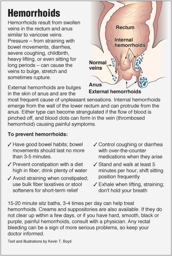 Hemorrhoids Pointfinder Health Infographics