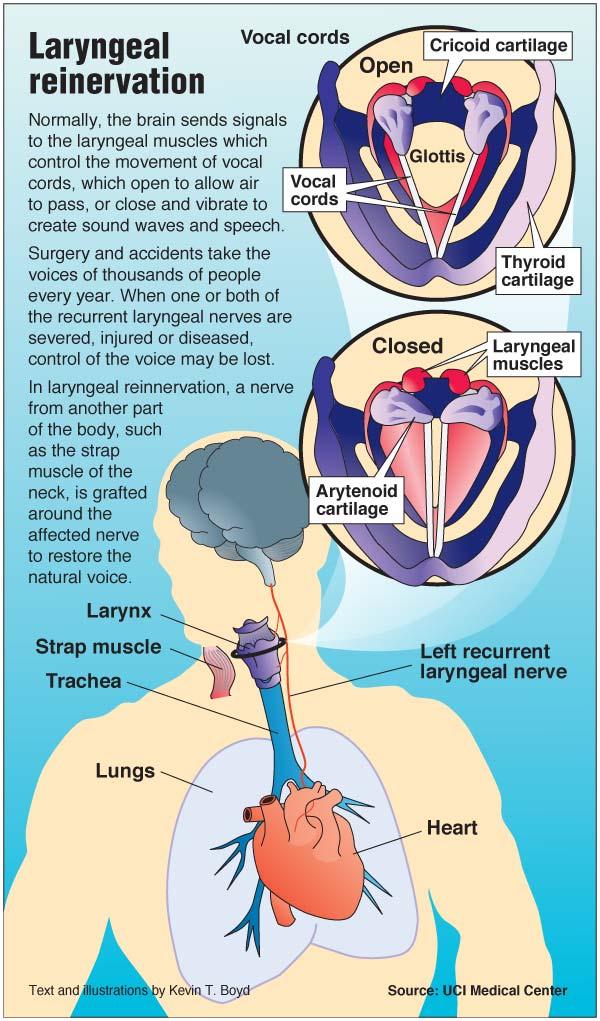 Laryngeal reinnervation