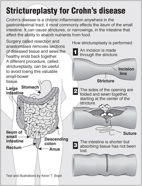 crohn u2019s strictureplasty  u2013 pointfinder health infographics