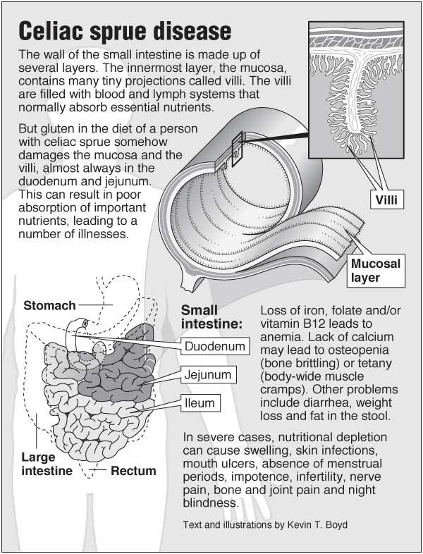 Celiac sprue