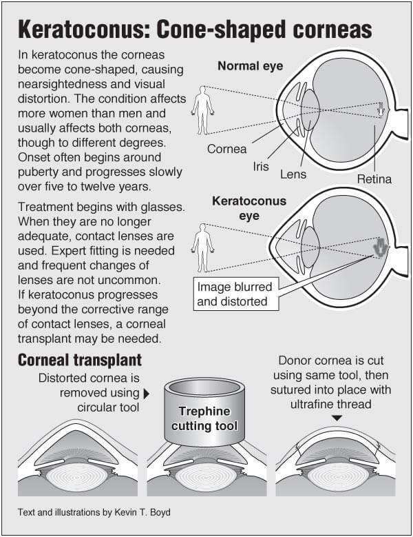 Keratoconus: Cone-shaped corneas